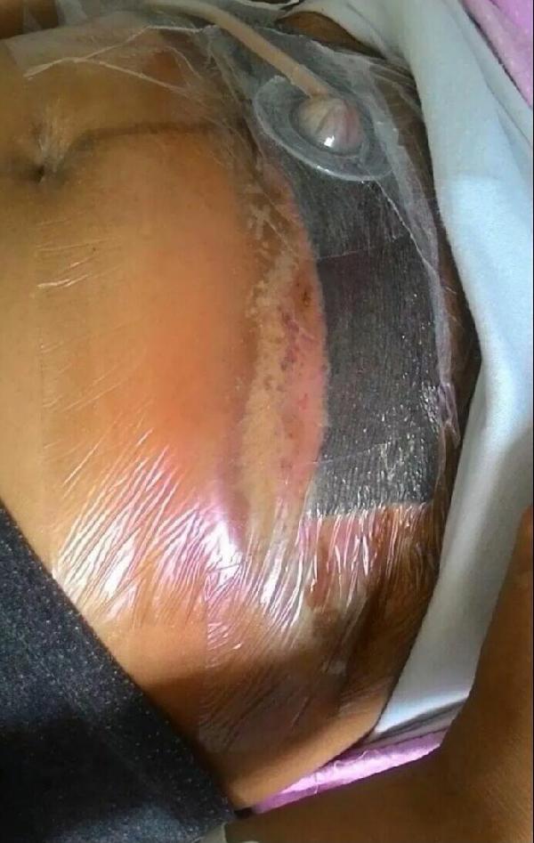 Sezaryenle doğumda enfeksiyon kaptı, 42 gündür hastanede !